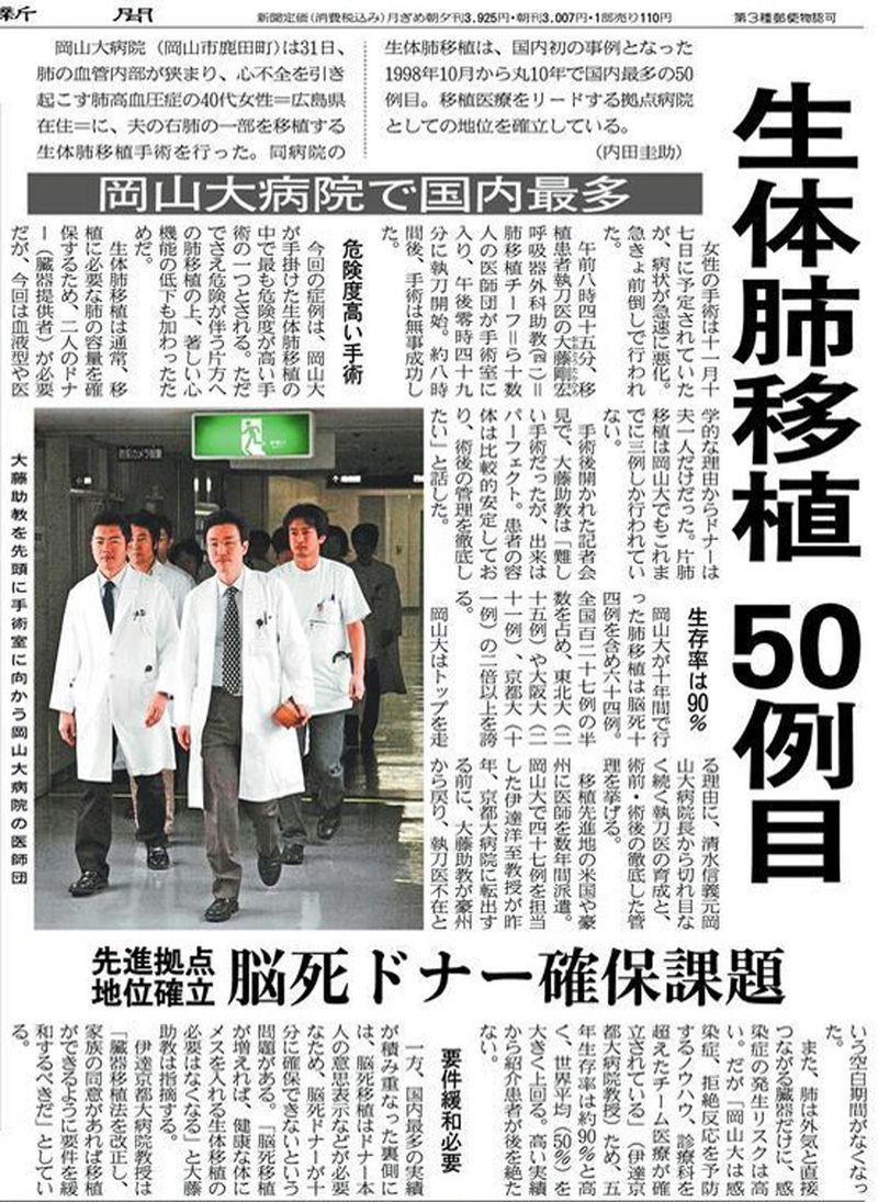 生体肺移植50例