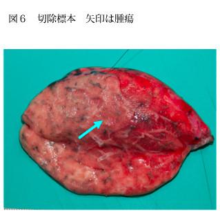 切除標本 矢印は腫瘍