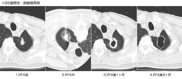65歳男性・肺腺癌再発