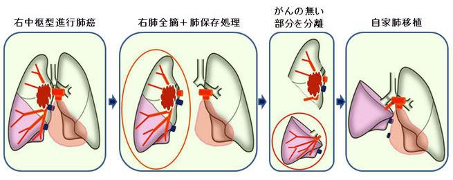 自家肺移植の様子