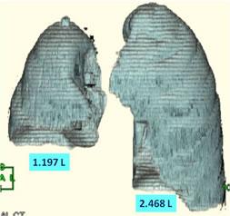 肺の3-D CTスキャン