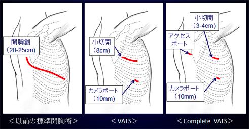 胸腔鏡補助下手術