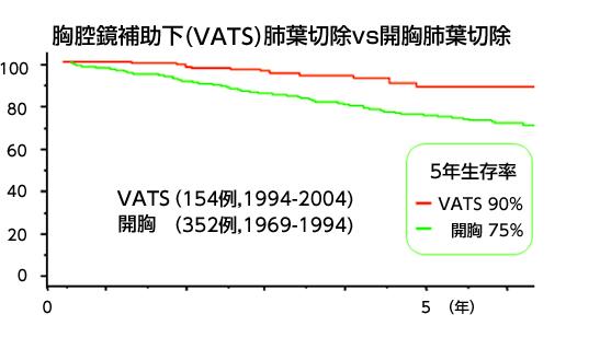 胸腔鏡補助下(VATS)肺葉切除vs開胸肺葉切除