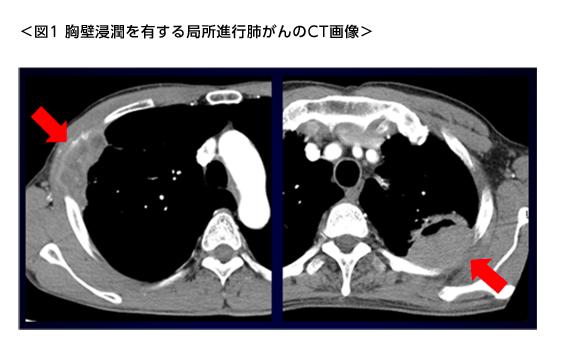 胸壁浸潤を有する局所進行肺がんのCT画像