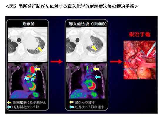 局所進行肺がんに対する導入化学放射線治療後の根治手術