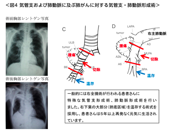 気管支および肺動脈に及ぶ肺がんに対する気管支・肺動脈形成術