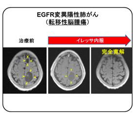 イレッサはEGFR変異陽性肺がんの予後を延長