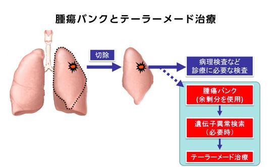 腫瘍バンクとテーラーメード治療