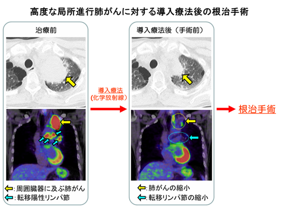 高度な局所進行肺がんに対する導入医療後の根治手術