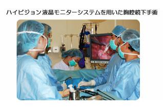 ハイビジョン液晶モニターシステムを用いた胸腔鏡下手術