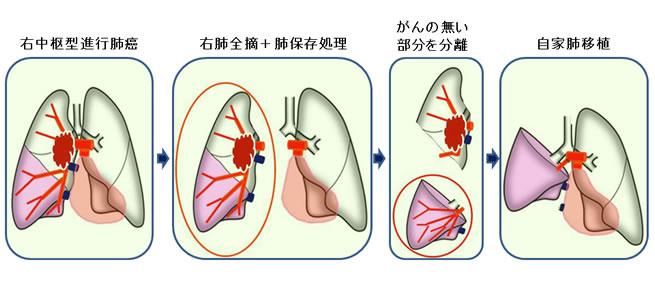 進行肺癌に対する自家肺移植
