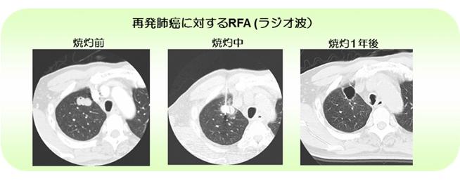 再発肺がんに対するRFA(ラジオ波)
